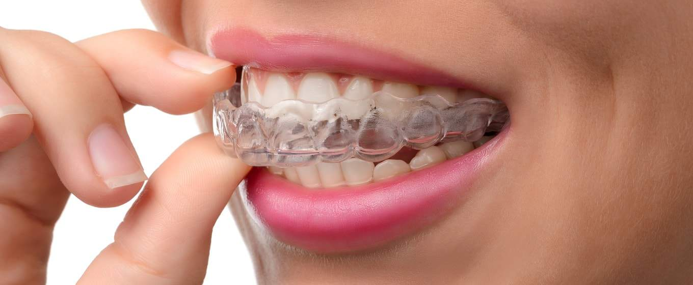 Dentists and Teeth whitening 2